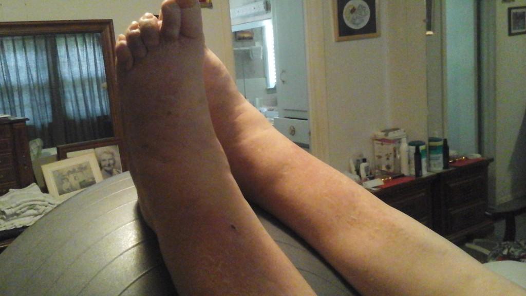Lower leg swelling