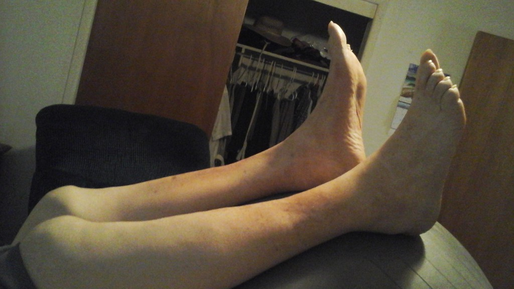 pic of foot after swelling treatment