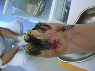 Chronic Diabetic Foot Wound