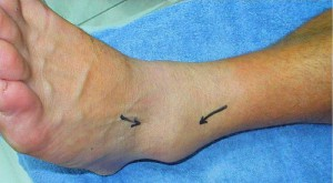 LOCAL Ankle Swelling