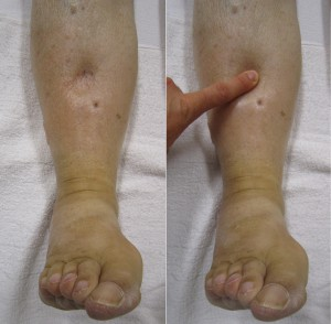 5 Easy Tips To Decrease Swelling Tips From A Physical
